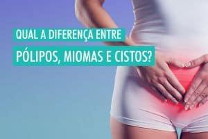 Qual a diferença entre pólipos, miomas e cistos