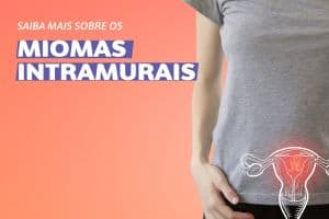Saiba mais sobre os Miomas Intramurais