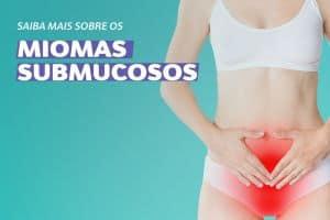 Miomas Submucosos - Sintomas, Diagnóstico e Tratamento
