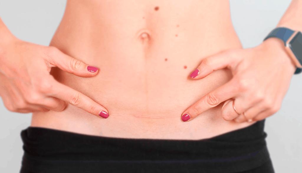 Endometriose em Cicatriz Cirúrgica