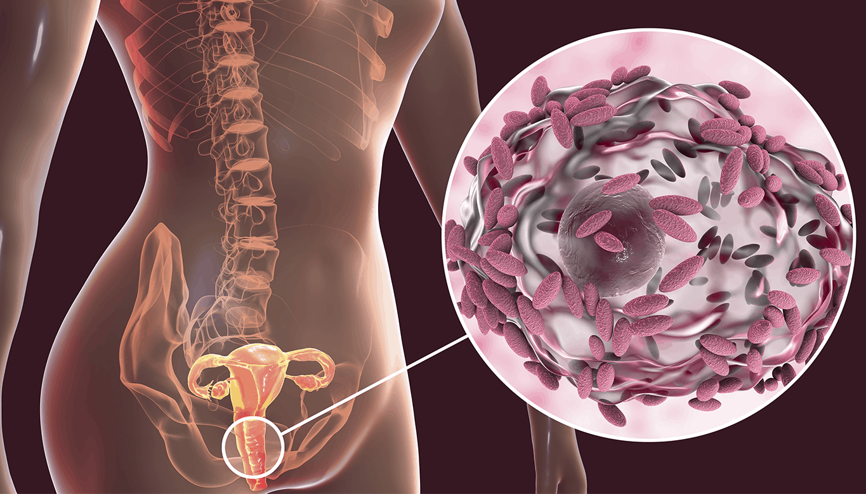 A Flora Vaginal