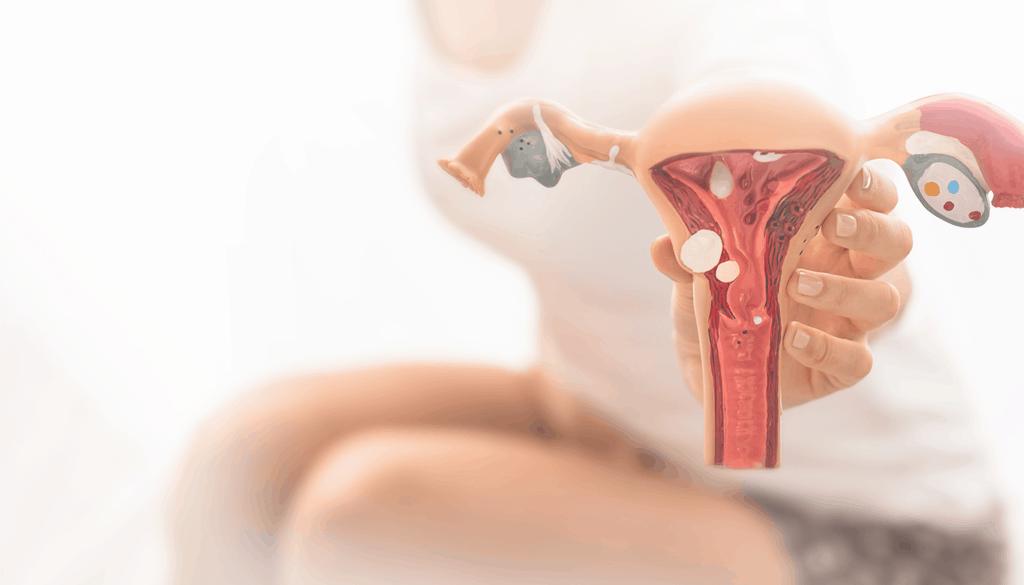 Endometriose Ovariana