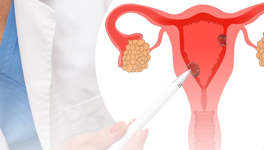 pólipo endometrial e pólipo endocervical