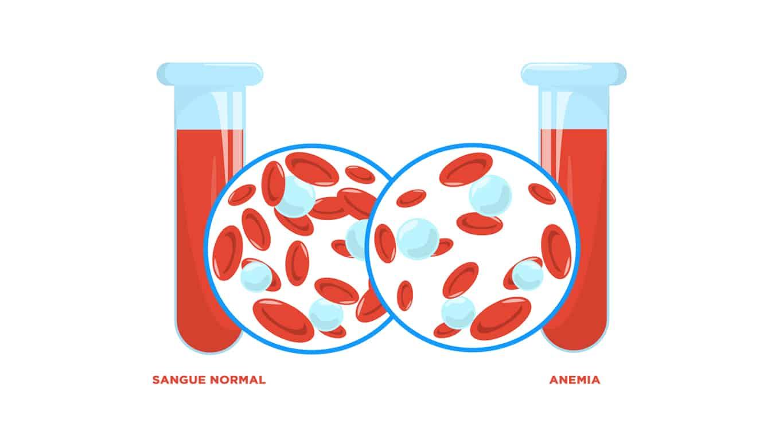 Anemia e Miomas Uterinos